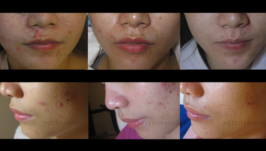 Acne Treatment Bangkok before and after